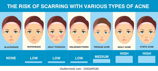 Acne scars. Different types of acne. Infographics. Skin problems. Skin health. Vector Illustration
