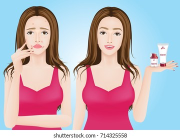 Acne skin problems before and after vector illustration