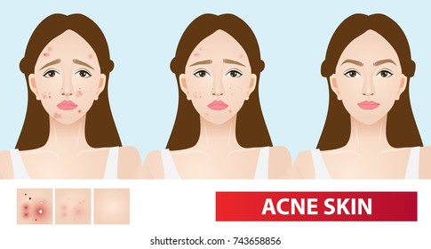 Acne skin of woman to clear steps vector illustration