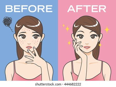 acne treatment before after cartoon illustration
