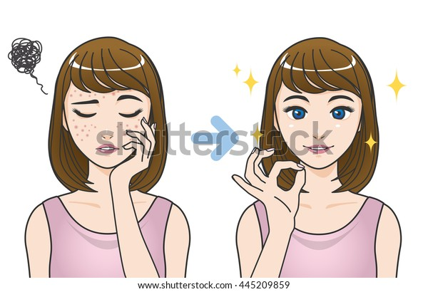 Acne Treatment Before After Cartoon Illustration Stock Vector  Royalty Free  445209859