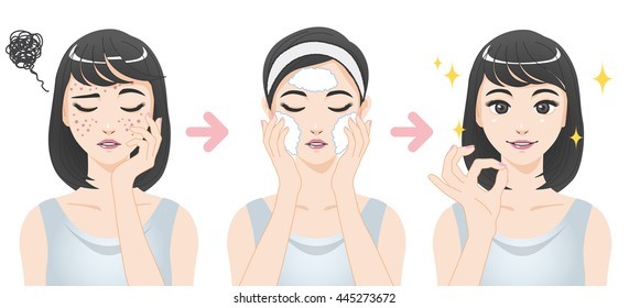 acne treatment before after, facial cleansing foam, cartoon illustration