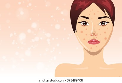 Acne treatment concept with beautiful woman face, vector illustration