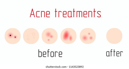 Acne treatment diagram illustration vector on white background,Beauty concept. before, after.