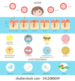 Acne types, causes and treatment infographics, vector flat style design illustration. Skin disease, dermatology inflammatory disorder. Acne comedones formation, skin care and medical therapy diagram.