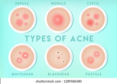 Acne types: whiteheads, blackheads, pustules, papules, cysts, nodules