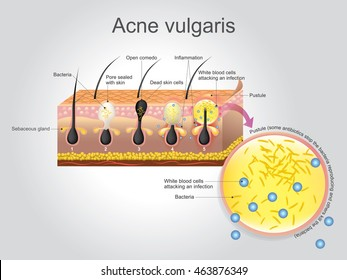 Acne vulgaris is a long-term skin disease that occurs when hair follicles become clogged with dead skin cells and oil from the skin. Illustration vector. Anatomy human layers skin.
