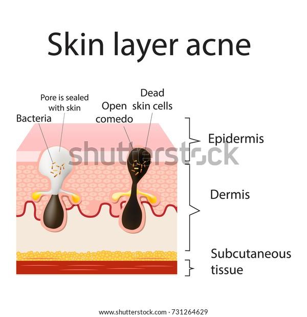 Acne Vulgaris Pimple Skin Layers Sebum Stock Vector (Royalty
