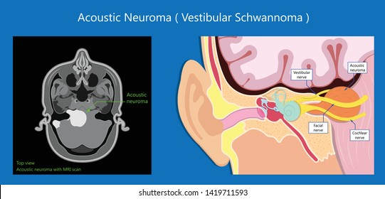 Acoustic Neuroma ear exam diagnose nerve treat noncancerous balance therapy