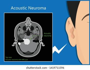 Acoustic Neuroma ear exam diagnose nerve treat noncancerous balance therapy