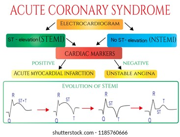 Acute coronary syndrome. Schematic Electrocardiogram of myocardial infarction( heart attack). Vector medical infographic.