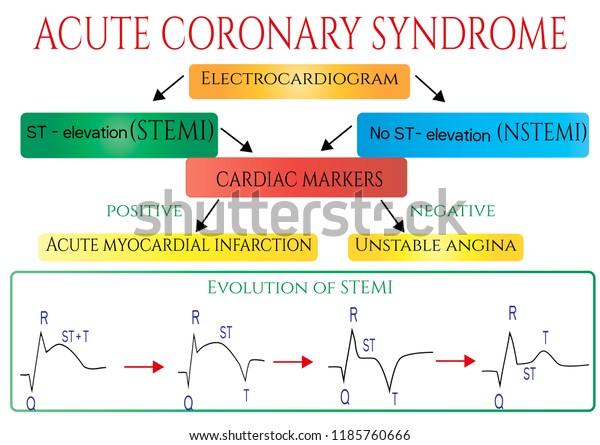 Acute Coronary Syndrome Schematic Electrocardiogram