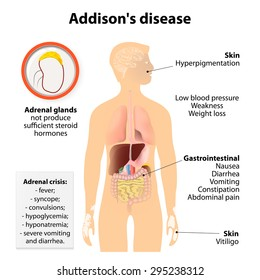 Addison's disease or Addison disease or chronic adrenal insufficiency or hypocortisolism and hypoadrenalism. Signs and symptoms.  Human silhouette with highlighted internal organs
