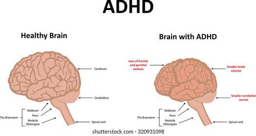 ADHD Illustration