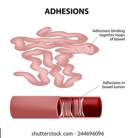 Adhesions.Human small intestine. Adhesions are scar tissue that forms between two organs that are not normally connected to each other. part of small intestine taken out.