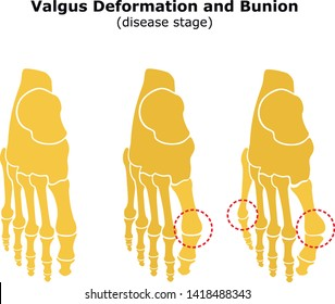 Age and valgus deformity of the thumb. Bunion. Stages of development of the disease. Silhouette of the foot bones. Vector illustration