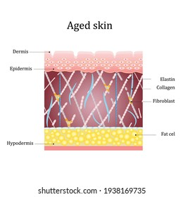 Aged skin layer. Structure human aged skin with collagen and elastin fibers, fibroblasts. Vector diagram