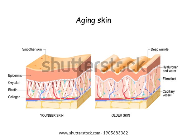 Aging skin. comparison and difference between older and younger skin. Close-up of fibroblast, collagen, elastin, and Oxytalan fibers, Hyaluronic acid. skin changes