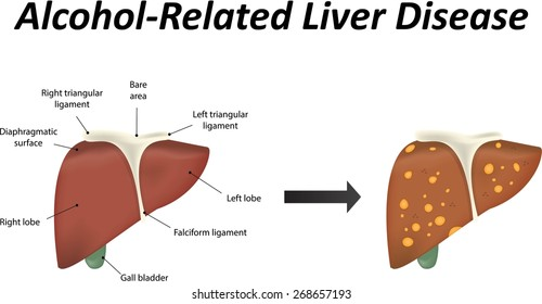 Alcoholic liver disease stock illustration 180661232 shutterstock alcohol related liver disease with steatosis ccuart Image collections