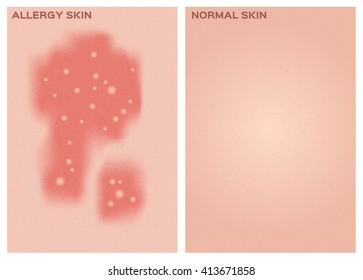 allergy skin texture and healthy vector . disease