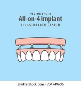 All-on-4 implant illustration vector on blue background. Dental concept.