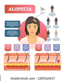 Alopecia - hair loss autoimmune disease medical vector diagram illustration with variations. Examples with totalis, barbae, areata, alopecia and universalis. Scheme with healthy skin and hair.