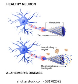 Alzheimer's disease is the change in tau protein that results in the breakdown of microtubules in brain cells. Mechanism of disease. two neurons: healthy cell and neuron with Alzheimers. Tau hypothesi