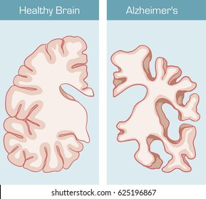 Alzheimer's Disease is a medical condition affecting the brain