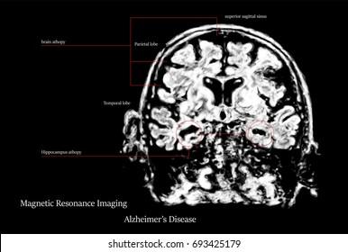 Brain scan images stock photos vectors shutterstock alzheimers disease mri picture version ccuart Images
