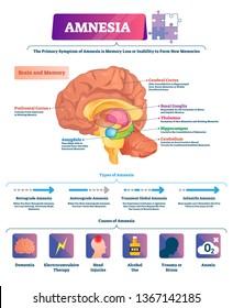 Amnesia vector illustration. Labeled brain memory loss disease types scheme. Diagram with cerebral, ganglia, thalamus, hippocampus, cerebellum or amygdala. Symptoms and causes of illness diagnosis.