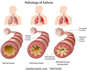 Anatomy of Asthma