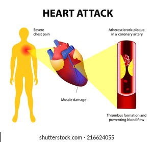 Anatomy of a heart attack. Diagram of a myocardial infarction. Atherosclerotic plaque in a coronary artery. Thrombus  totally occluding the artery and preventing blood.