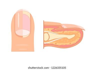 Anatomy of human finger nail. Medical diagram of the structure of the inside cross-section of the fingers. Vector infographic concept  isolated on white background