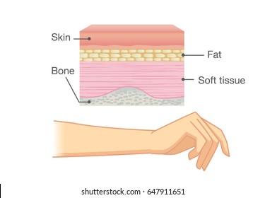 Human Skin Layers Images, Stock Photos & Vectors | Shutterstock