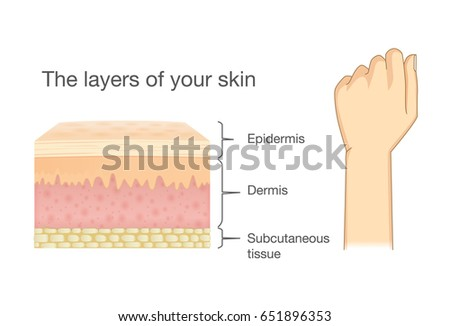 Anatomy Human Skin Layer Arm Isolated Stock Vector (Royalty Free ...