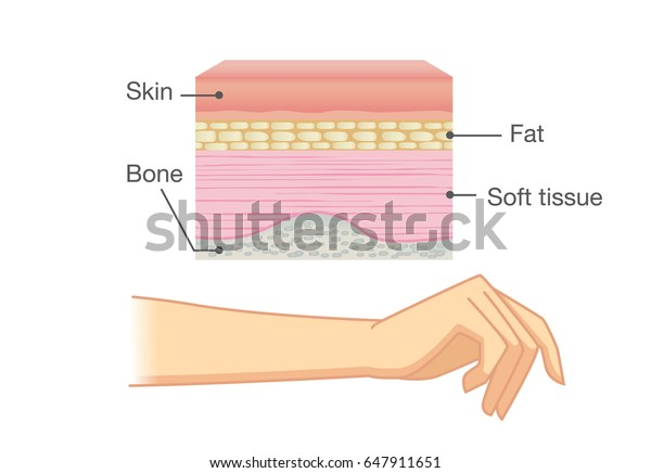 anatomy of human skin layer and arm isolated on white  ideal for medical  illustration and