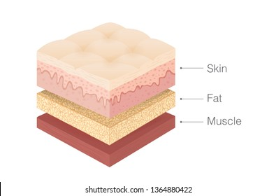 Anatomy of human Skin layer, fat and muscle layer in isometric style. Illustration about medical and health.