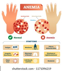Anemia vector illustration. Medical labeled scheme with problematic red and white blood cells, and platelets. Microscopic diagram with disease diagnostic symptoms.