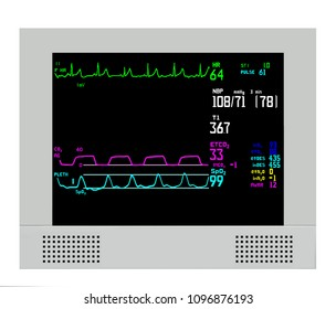 An anesthesia monitor shows real time vital signs for constant patient surveillance during surgery in a hospital, including heart rate, rhythm, oxygenation, blood pressure, capnography, and gas data.