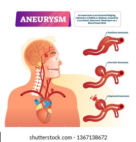 Aneurysm vector illustration. Labeled medical outward bulging vessel scheme. Educational anatomical graphic with inner organs problem explanation. Fusiform, saccular and ruptured examples infographics