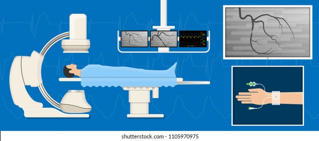 Angiography medical treatment Cardiac Catheterization Angiogram Biopsy Angioplasty Stent Congenital Heart Defect Ablation CAG arteries cholesterol plaque attack  X-ray blood flow diagnose diagnosis