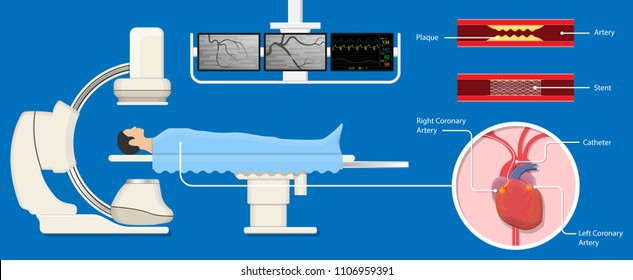 Angiography medical treatment Cardiac operation Angiogram Biopsy Angioplasty Stent Congenital Heart Defect Ablation CAG arteries cholesterol plaque attack  X-ray blood flow diagnose diagnosis blocked