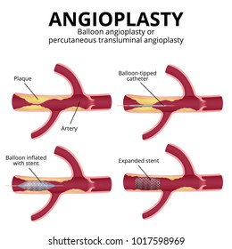 Angioplasty, balloon angioplasty and percutaneous transluminal angioplasty (PTA), stages of operation, artery with plaques in a section