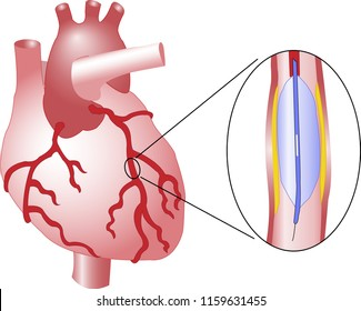 Angioplasty is an endovascular procedure. Its purpose is to widen narrowed or obstructed arteries or veins. It is performed to treat arterial atherosclerosis. Black and white version