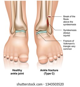 Ankle joint fracture Type c medical vector illustration on white background