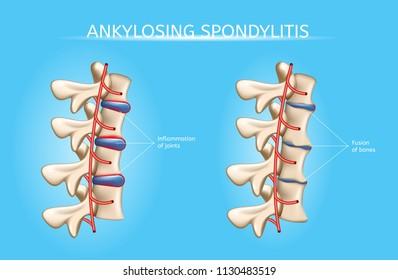 Ankylosing Spondylitis Realistic Vector Medical Chart with Human Vertebral Column Joints Inflammation and Bones Fusion Anatomical Illustration. Spine joint bones arthritis symptoms orthopedic concept