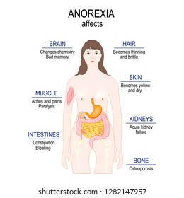 Anorexia nervosa is an eating disorder. low weight. Anorexia affects. woman silhouette with highlighted internal organs. healthy lifestyle