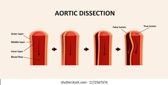 Aortic Dissection, Aortic Aneurysm
