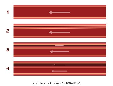 aortic dissection / blood artery and vein vector