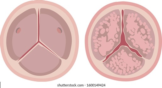 Aortic valve calcification, stenosis, tight aortic valve compared with normal aortic valve